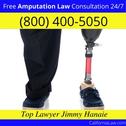 Best Amputation Lawyer For Foresthill