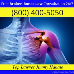 Best Carmel Valley Lawyer Broken Bones