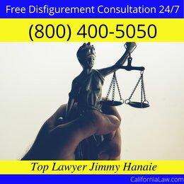 Best Disfigurement Lawyer For Ukiah