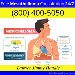 Best Mesothelioma Lawyer For Desert Hot Springs