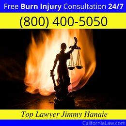 Burn Injury Attorney Hayward