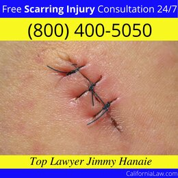 Feather Falls Scarring Injury Lawyer CA