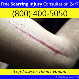French Camp Scarring Injury Lawyer CA