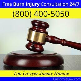 Hat Creek Burn Injury Attorney