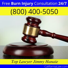 Hayward Burn Injury Attorney