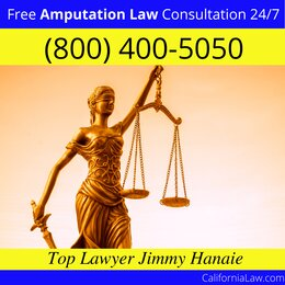 Moss Beach Amputation Lawyer
