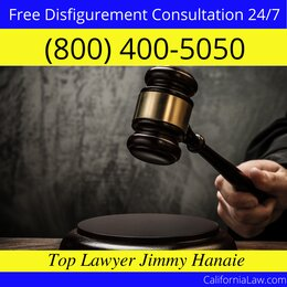 Twin Peaks Disfigurement Lawyer CA