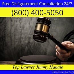 Weed Disfigurement Lawyer CA