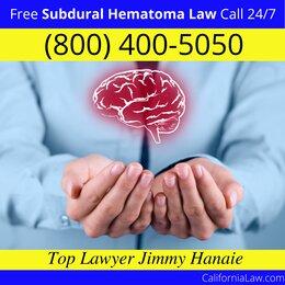 Best Alamo Subdural Hematoma Lawyer