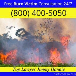 Best Camarillo Burn Victim Lawyer