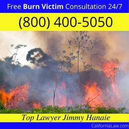 Best Camp Nelson Burn Victim Lawyer