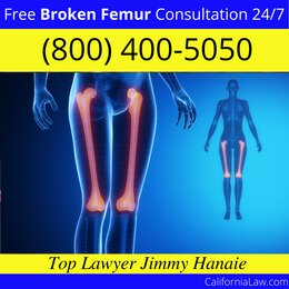 Best Clio Broken Femur Lawyer
