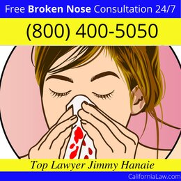 Best Loma Mar Broken Nose Lawyer