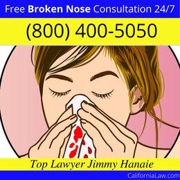 Best Los Gatos Broken Nose Lawyer