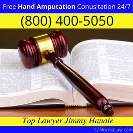Best Morgan Hill Hand Amputation Lawyer