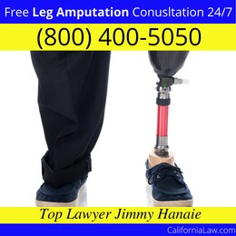 Best Moss Landing Leg Amputation Lawyer