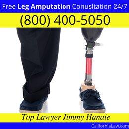 Best Mount Laguna Leg Amputation Lawyer