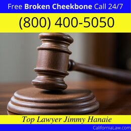 Best Olancha Broken Cheekbone Lawyer