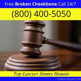 Best Redwood City Broken Cheekbone Lawyer