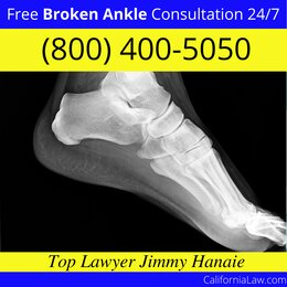 Best San Ysidro Broken Ankle Lawyer