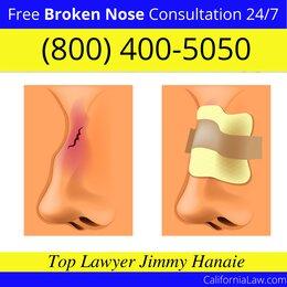 Boyes Hot Springs Broken Nose Lawyer