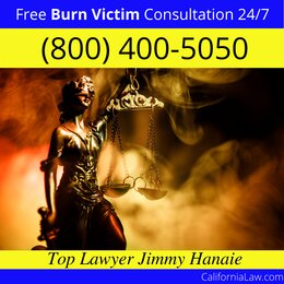 Corcoran Burn Victim Attorney