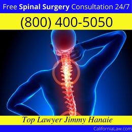 Newport Beach Spinal Surgery Lawyer