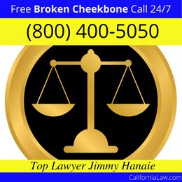 Olancha Broken Cheekbone Lawyer