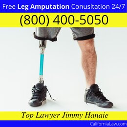 Oroville Leg Amputation Lawyer