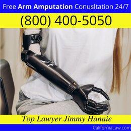 Palos Verdes Peninsula Arm Amputation Lawyer