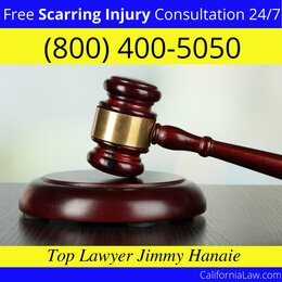 Potter Valley Scarring Injury Lawyer CA
