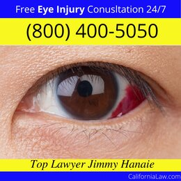 Redding Eye Injury Lawyer CA