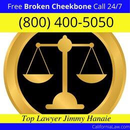 Redwood City Broken Cheekbone Lawyer