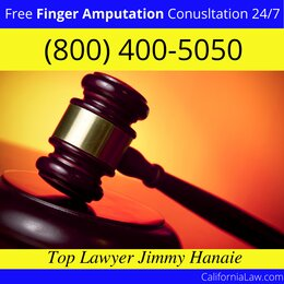Watsonville Finger Amputation Lawyer