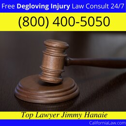 Best Degloving Injury Lawyer For Cupertino