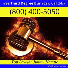 Best Third Degree Burn Injury Lawyer For Grass Valley