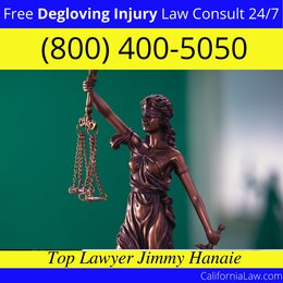 Mount Hamilton Degloving Injury Lawyer CA