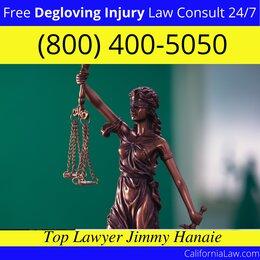 San Quentin Degloving Injury Lawyer CA