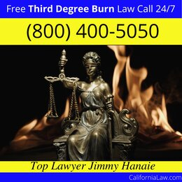 Santa Margarita Third Degree Burn Injury Attorney