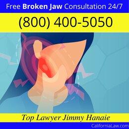 Best California Broken Jaw Lawyer